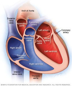 life insurance with ventricular septal defect